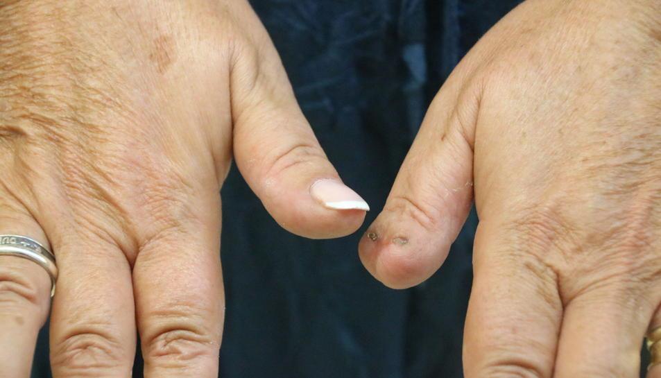 Pla detall de les mans de la víctima, amb les seqüeles de la mossegada en un dit polze. Imatge del 27 de setembre de 2016