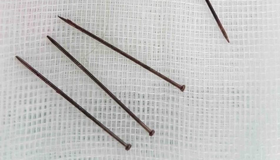 Les agulles extretes en l'operació.