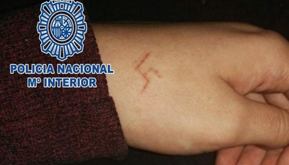 La cremada li va deixar una cicatriu amb el símbol.