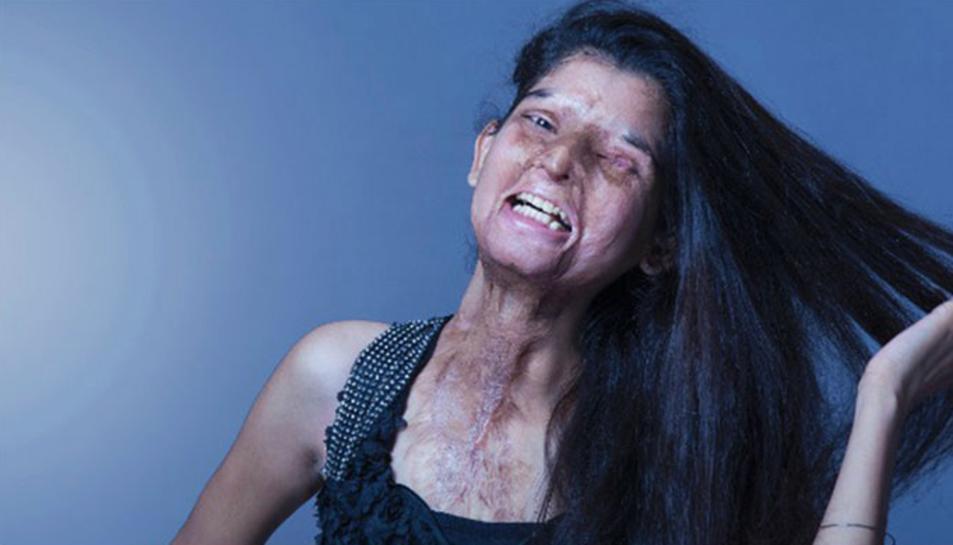 Imatge de la campanya de Stop Acid Attacks.