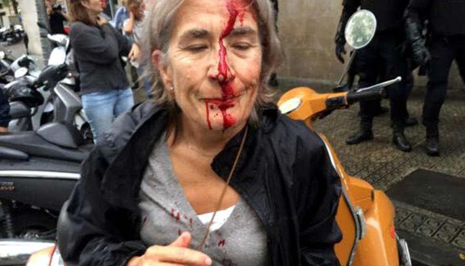 Una dona amb la cara ensangonada davant l'Escola Infant Jesús de Barcelona, després d'una càrrega policial de l'1 d'octubre.