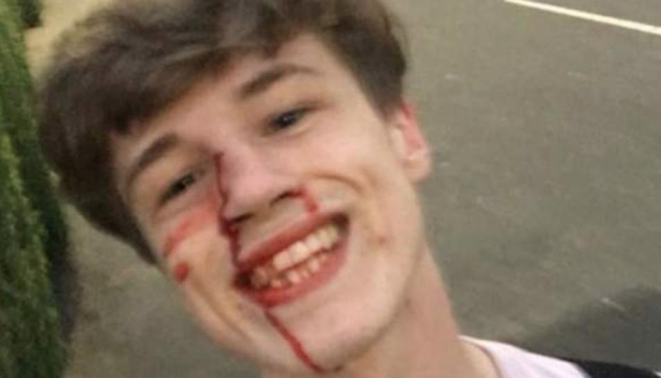 La foto que va penjar el noi després de ser agredit