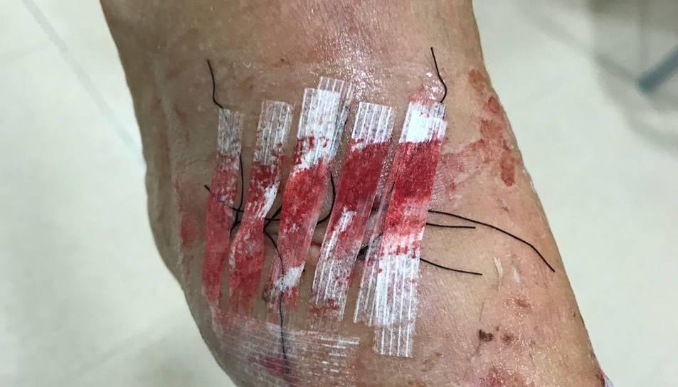 El gos va mossegar la cama esquerra de l'afectada.