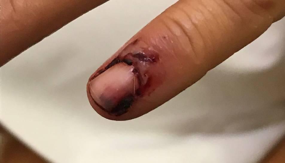 Imatge de les ferides causades pel Pit Bull.