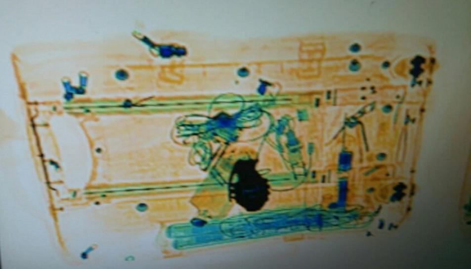 Aquesta és la imatge d'escàner on es pot veure l'objecte sospitós.
