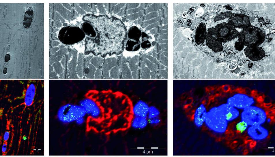 És la primera vegada que s'identifica una malaltia causada per una mutació del gen de la mioglobina