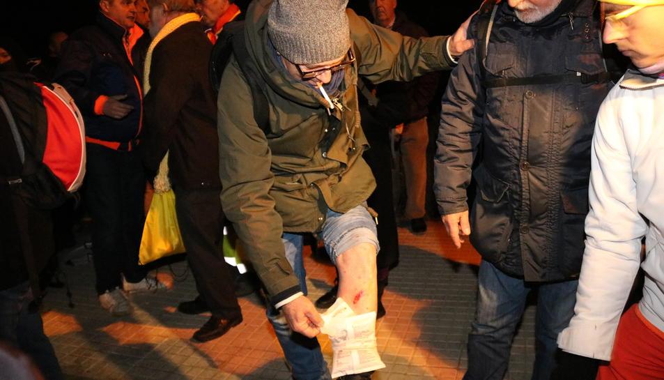 Un ciutadà amb una ferida al genoll en una actuació policial per al pas de la comitiva que trasllada Forcadell.