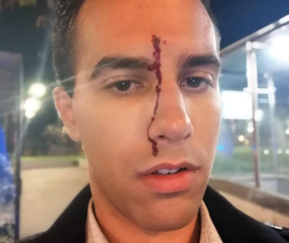El periodista del Canal Blau Xavi Martínez amb un trau sagnant al front després d'haver patit una agressió homòfoba.