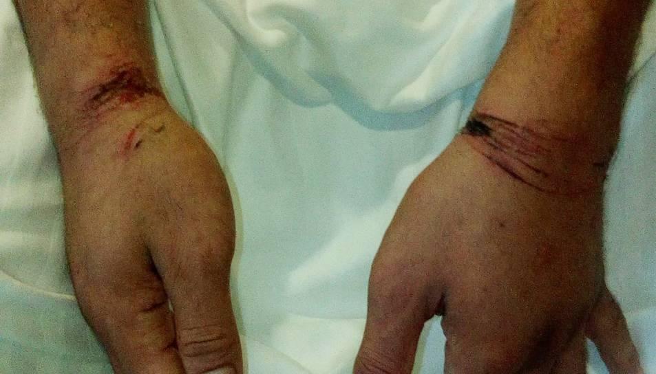 Pla tancat de les marques de les manilles als canells de l'home detingut per conduir contra direcció per l'AP-7. Imatge publicada el 23 de setembre del 2019