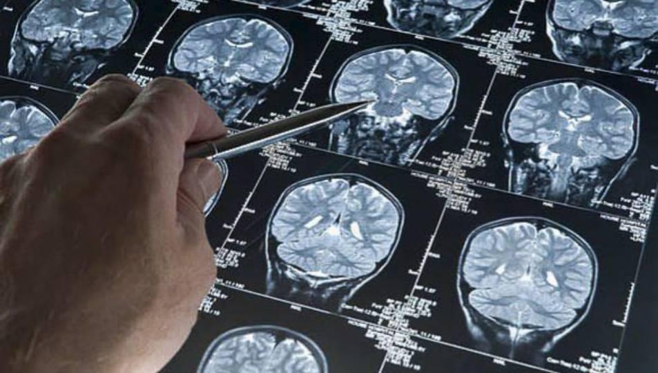 Imatge d'una ressonància d'un pacient amb Alzheimer