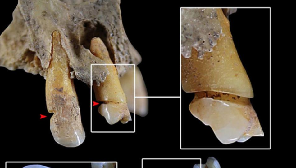 Dentició de l'individu 90 de Castellón Alto amb evidències d'ùs paramastegador de la dentició.
