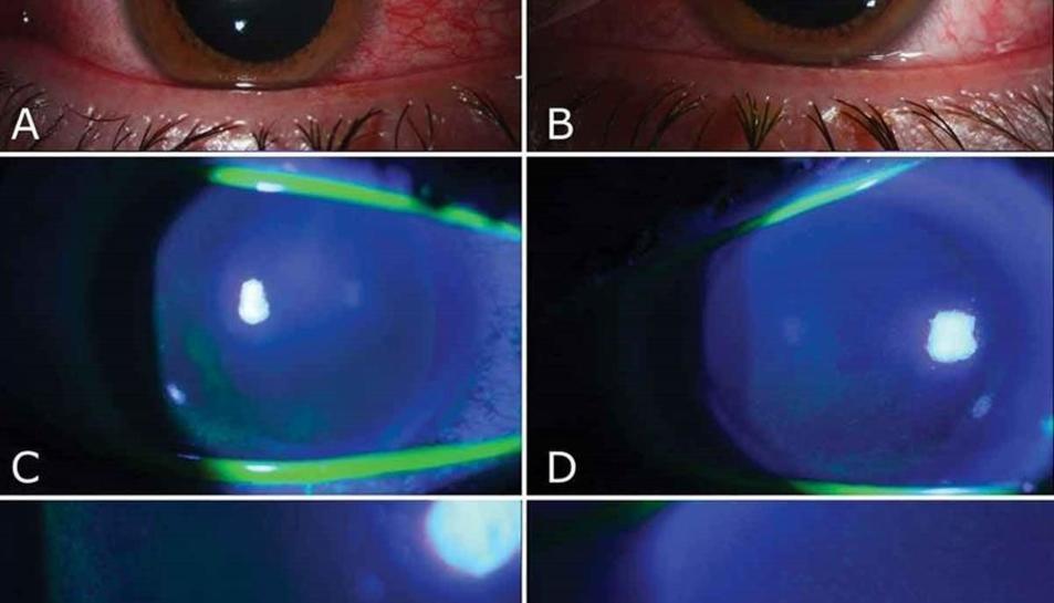 Imatge dels ulls d'un pacient que pateix fotoqueratitis a causa de l'exposició a un llum germicida.