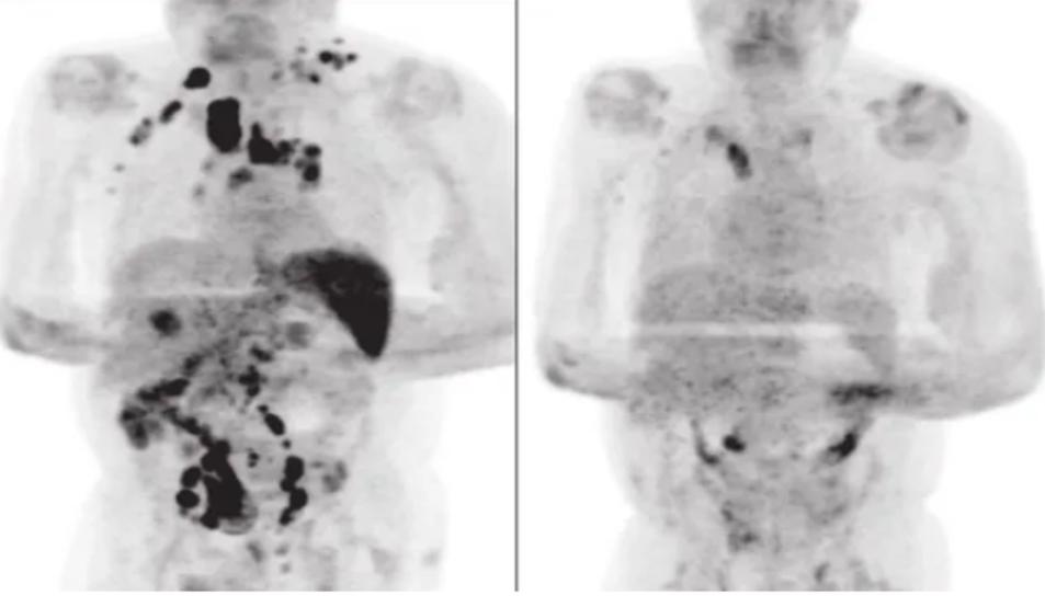 Comparación entre la tomografía computerizada del paciente antes del covid 19 (izquierda) y después (derecha).