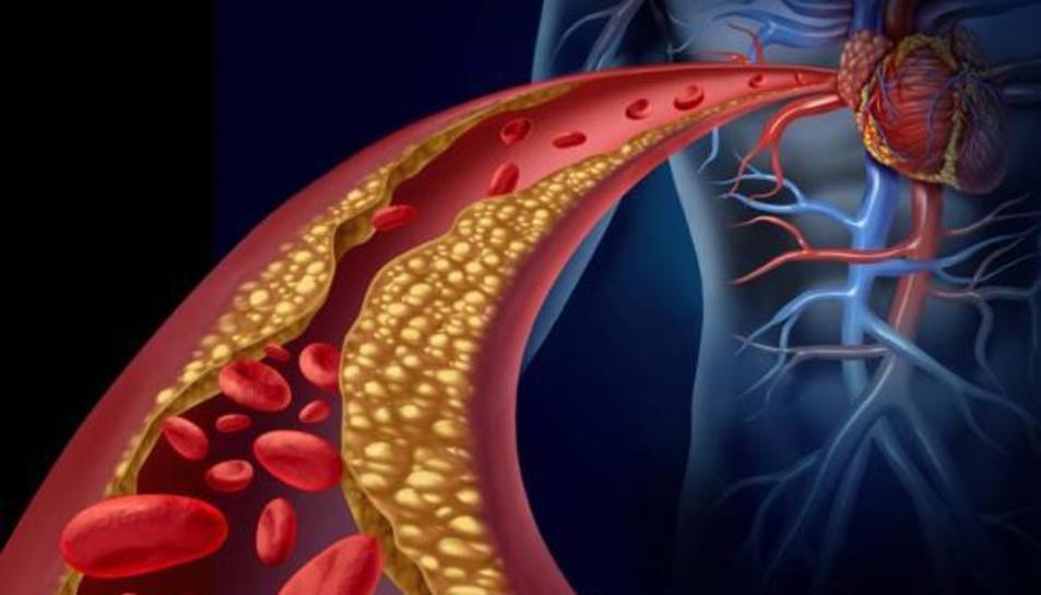 El tractament del colesterol pot influir en el desenvolupament de la demència.