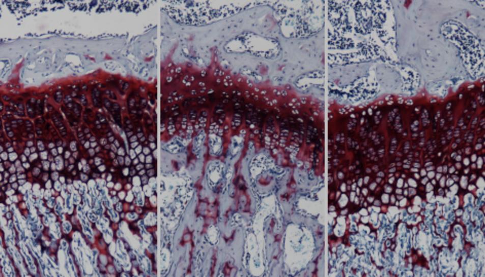 Anàlisi histològica d'una secció de la placa de creixement òssia