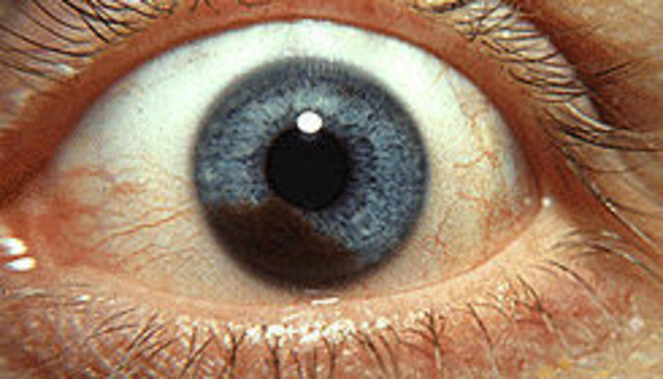 Imatge d'un melanoma a l'iris d'un ull.