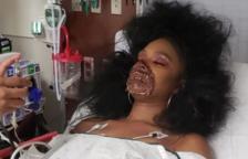 Acaba a l'hospital després que els metges pensessin que el maquillatge de zombi que portava era real
