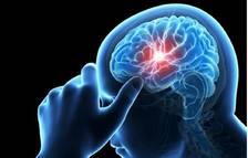 Un de cada quatre casos de trencament d'aneurisma cerebral es confon amb una migranya