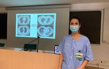 El 84% dels pacients amb covid ingressats a l'UCI tenen problemes respiratoris als 3 mesos de l'alta