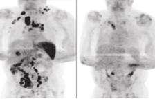 Un home es contagia de coronavirus i després de superar-lo li remet el càncer que patia
