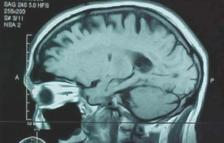 Resonancia magnética de un cerebro en el que se aprecia un tumor. / EFE