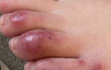 Les lesions en mans i peus podrien ser un efecte de la resposta immune al coronavirus